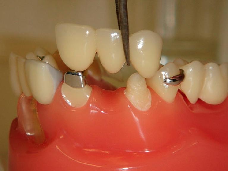 Мостовидный протез расчет на зубы