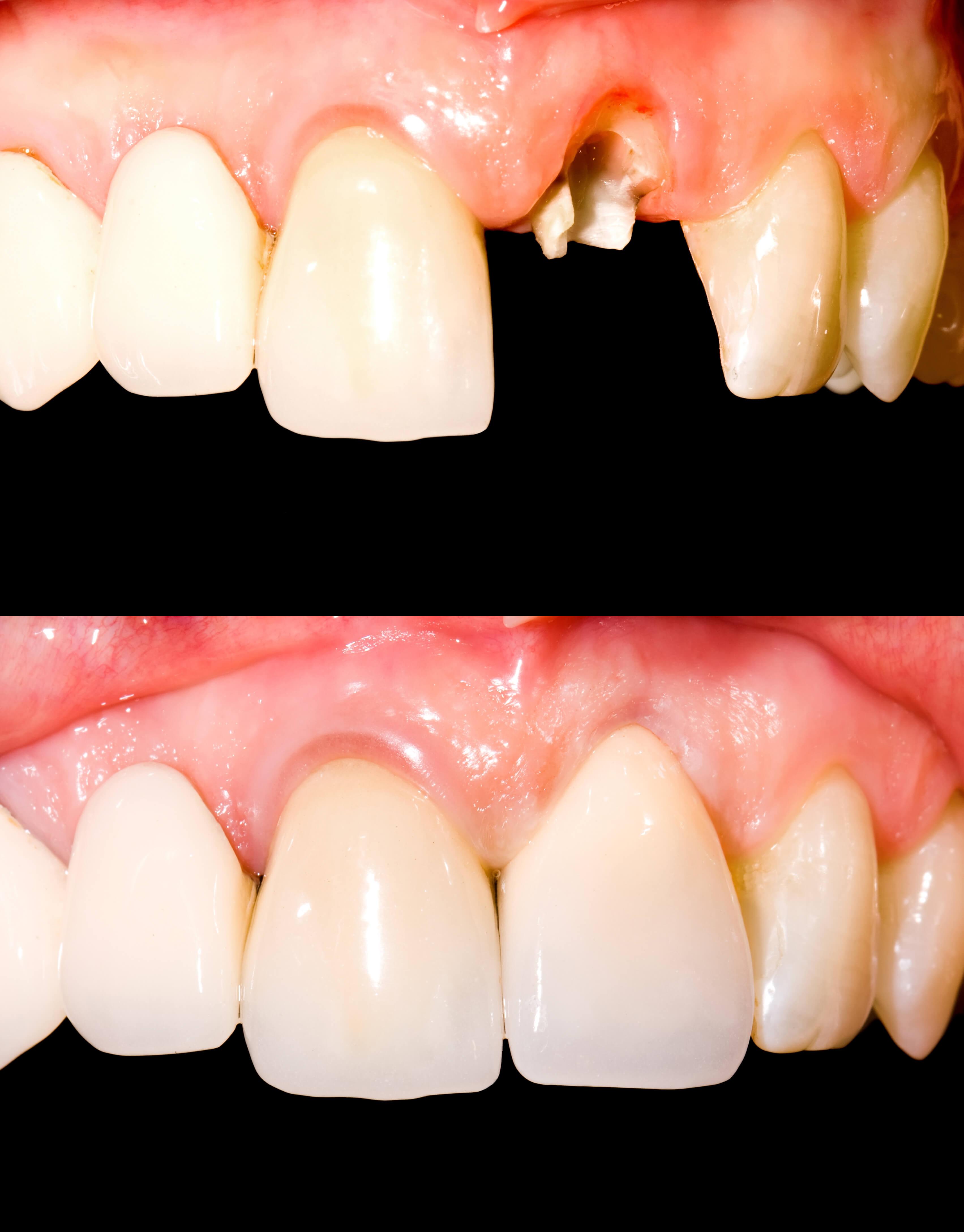Одномоментная имплантация зуба стоимость