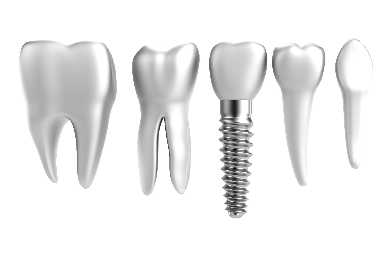 Полная имплантация зубов в германии