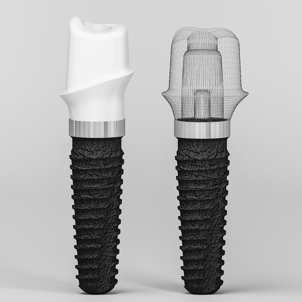 Имплантация зуба установка коронки