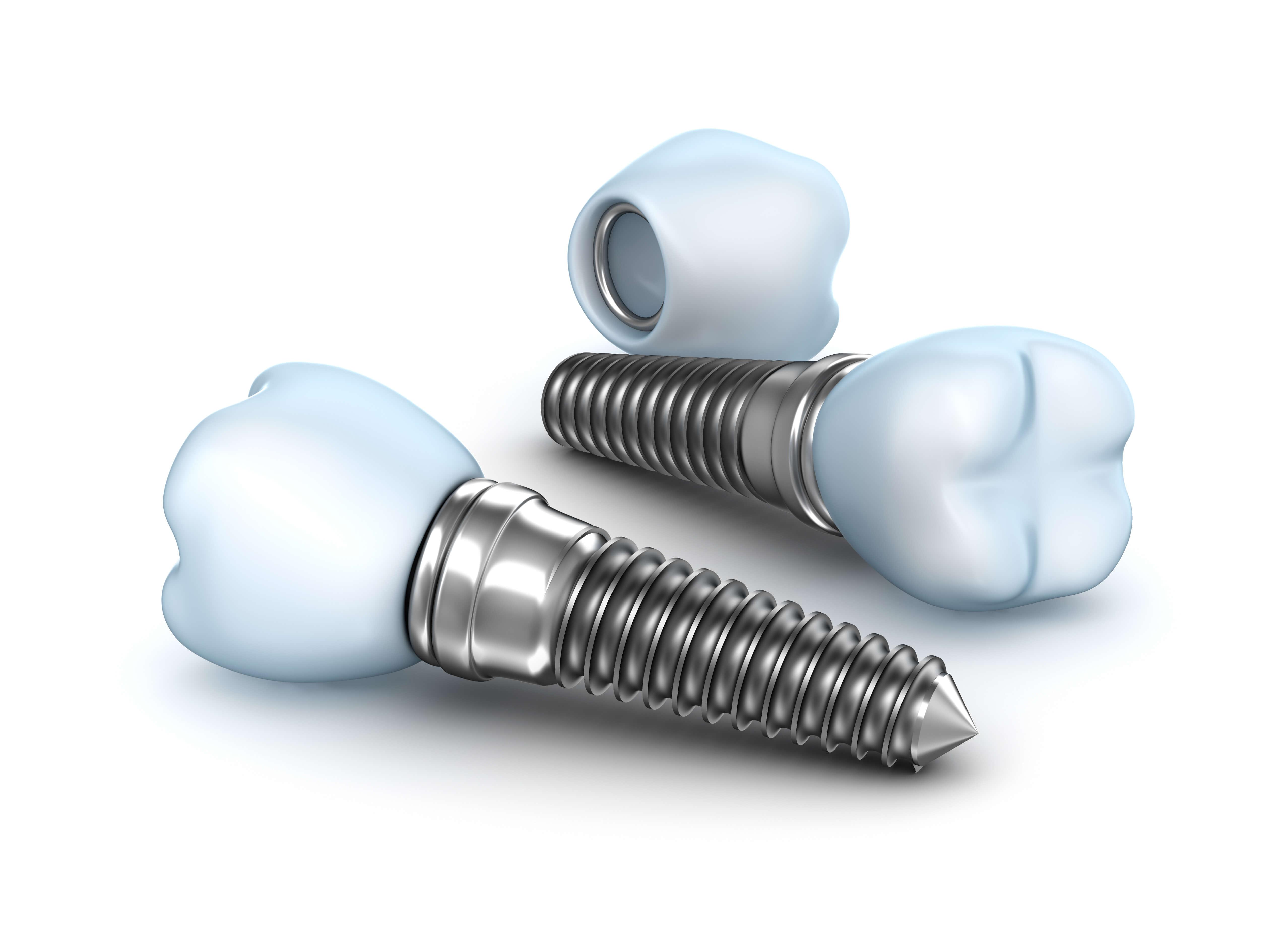 Безоперационная одноэтапная имплантация зубов